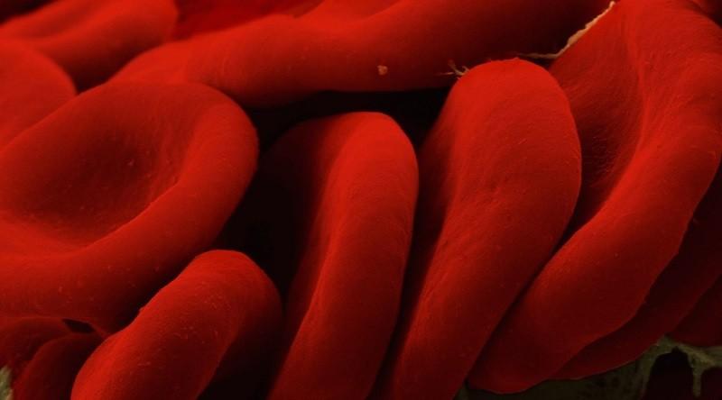 Увеличение эритроцитов при макроцитарной анемии