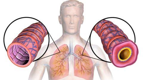 Бронхиальная астма: симптомы, диагностика, лечение у взрослых и детей