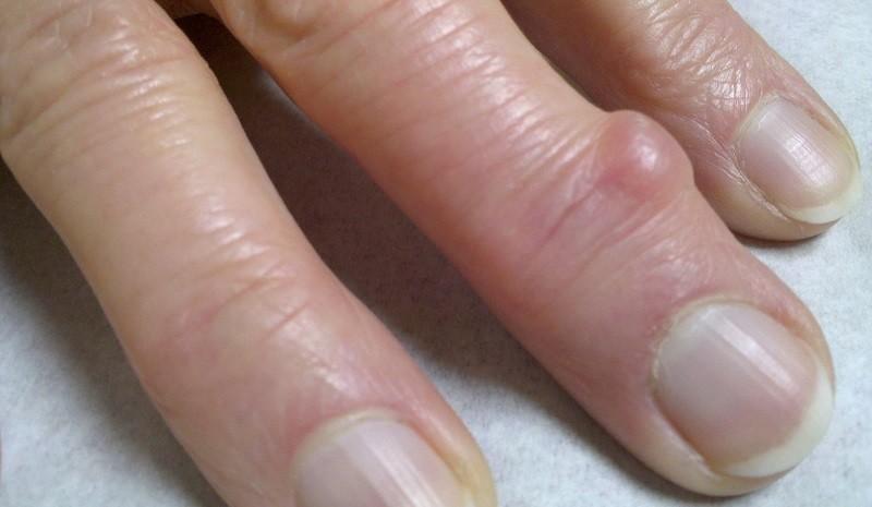 Слизистая киста на пальце, фото
