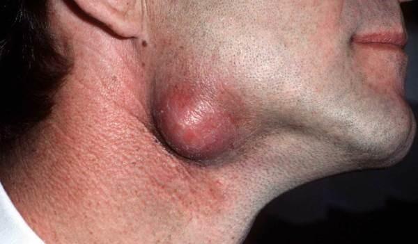 Атерома на шее