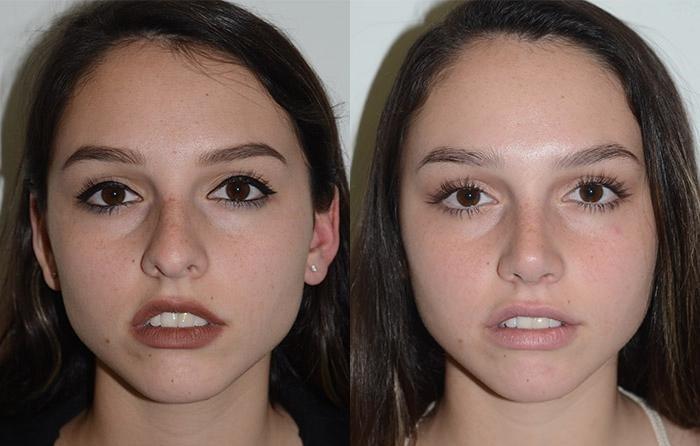 Ринопластика, фото до и после