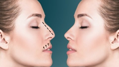 Ринопластика: описание, отзывы, цена, фото до и после