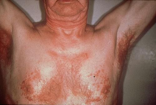 Как выглядит сыпь от сиборейного дерматита под мышками