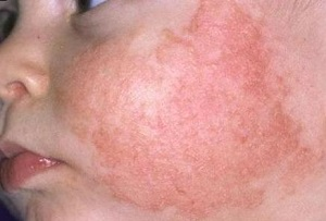 аллергия на цитрусовые у детей, фото