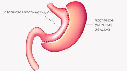 Гастрэктомия (удаление желудка): как проходит операция, возможные осложнения