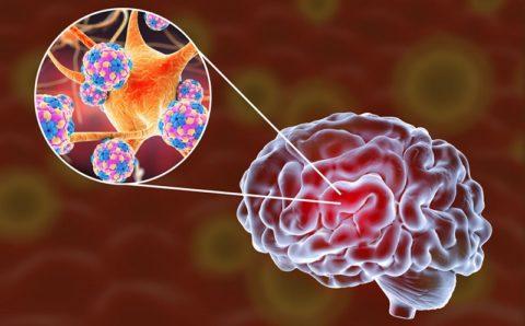 Энцефалит: виды, причины, симптомы, лечение