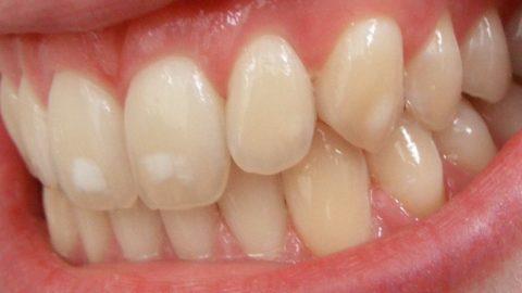 Белые пятна на зубах: причины, удаление