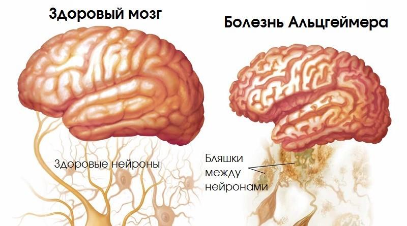 Болезнь Альцгеймера - что это, одна из предполагаемых причин