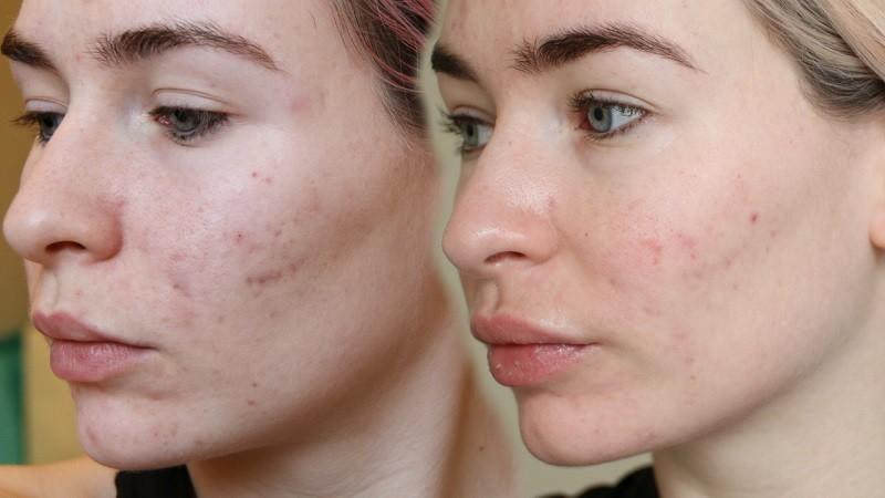 Фото до и после 3 месяцев применения