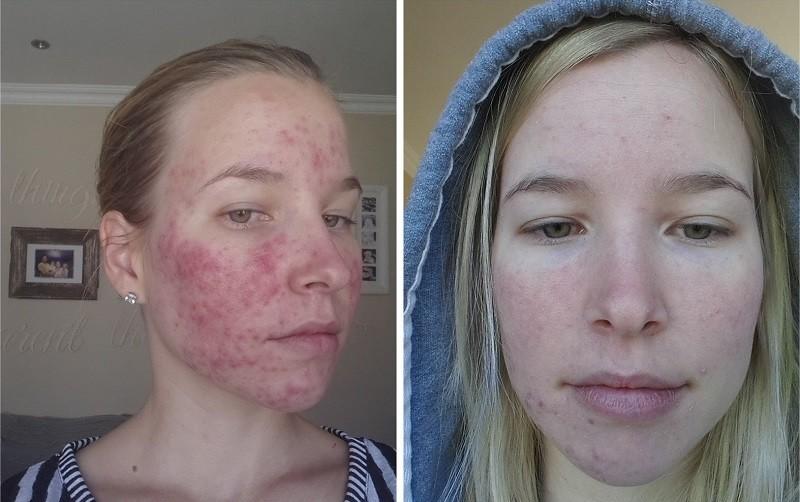 Фото до и после 3 применения Роаккутана от прыщей