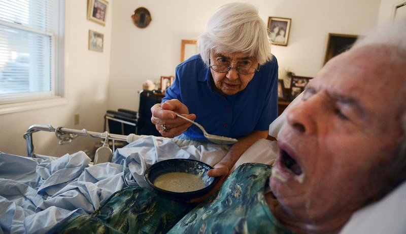 Фото больного болезнью Альцгеймера на поздней стадии