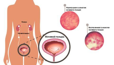 Цистит у женщин и у мужчин: причины, симптомы, диагностика, лечение