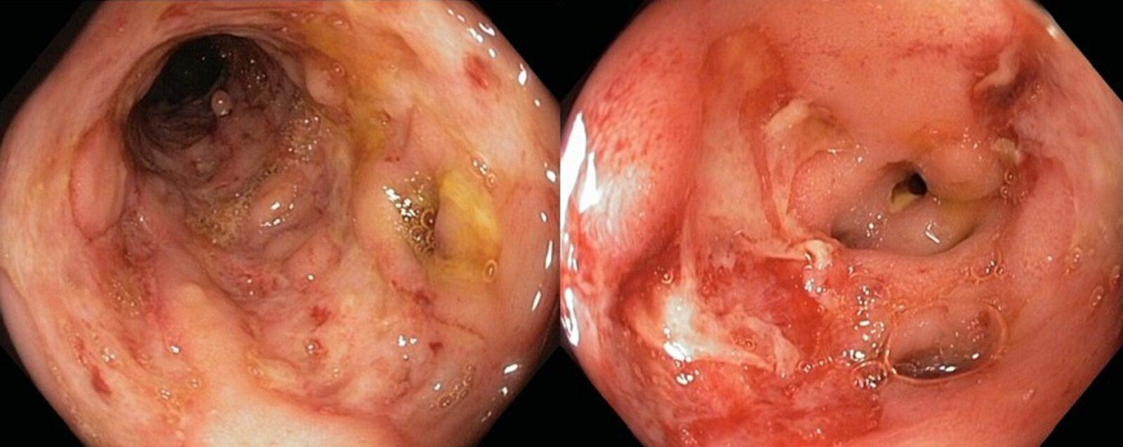 Фото кишечника с болезнью Крона