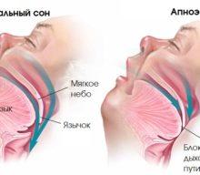 Апноэ сна: причины, симптомы, диагностика, лечение, типы