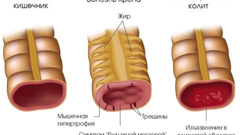 Болезнь Крона: симптомы, лечение у взрослых, причины и диагностика