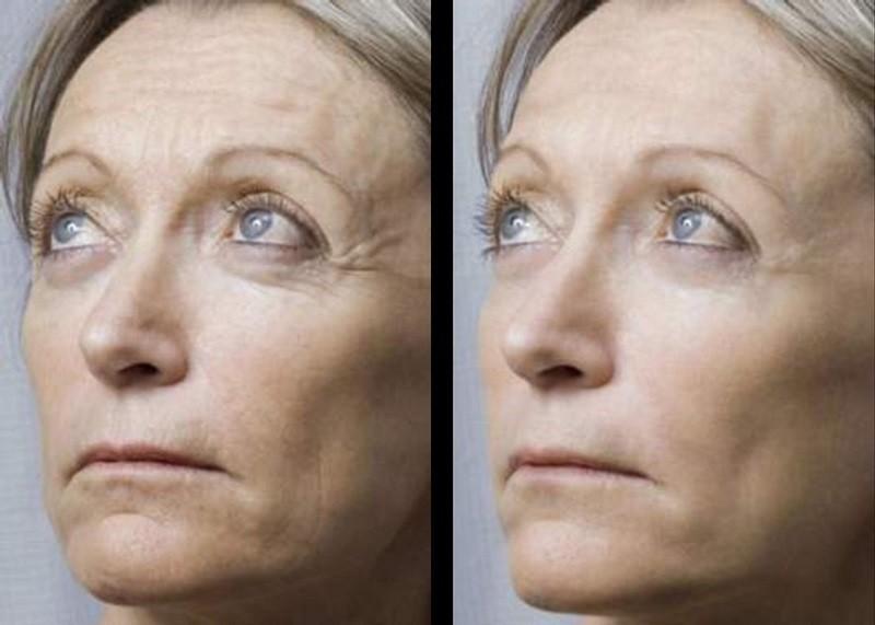 До и после мезотерапии, фото
