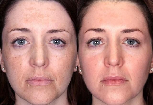 Кислотный пилинг для лица гликолевая кислотой до и после