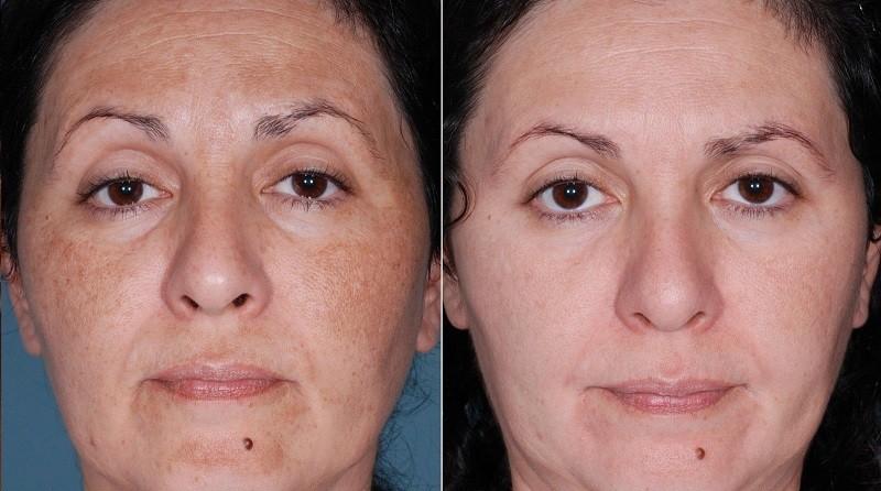 Кислотный пилинг для лица салициловой кислотой, фото до и после