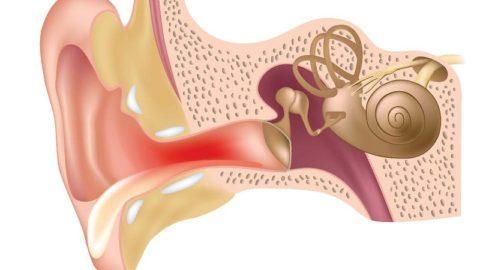Острый наружный отит: причины, симптомы, лечение