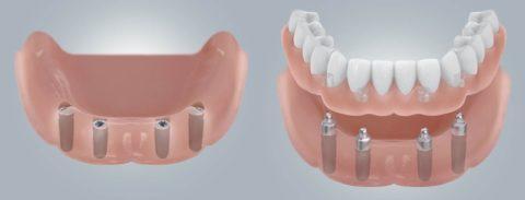 Временные протезы на импланты