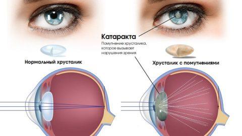 Катаракта: симптомы и лечение, причины, диагностика, фото