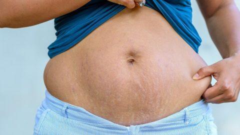 Как убрать живот и бока после родов в домашних условиях