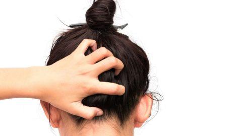 Лечение сухой себореи кожи головы: препараты и народные средства, диета