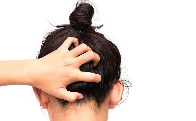 Лечение сухой себореи кожи головы