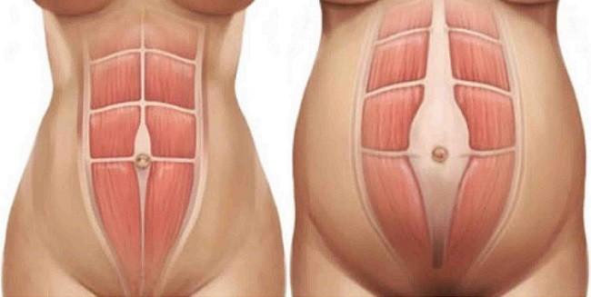 Как растягиваются мышцы пресса после рождения ребенка