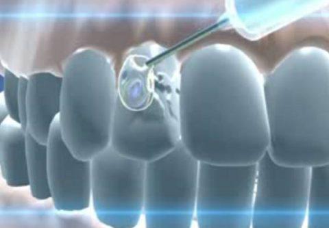 Жидкая пломба для зубов
