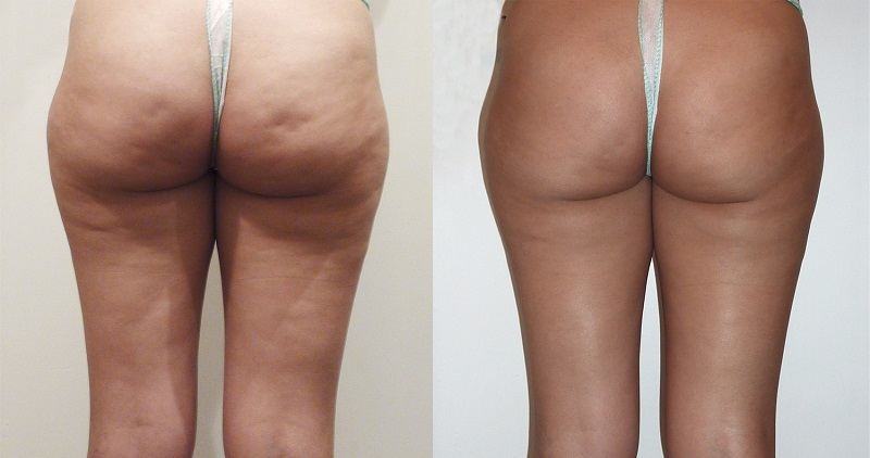 Душ Шарко, фото до и после процедуры
