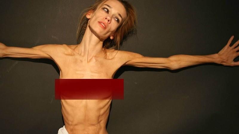 Анорексия - частая причина истощения