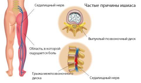Ишиас (воспаление седалищного нерва): причины, симптомы, диагностика, лечение