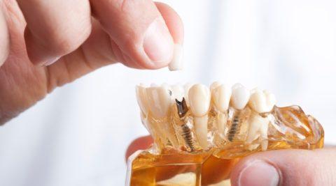 Идеальные новые зубы: какие варианты протезирования на имплантах существуют