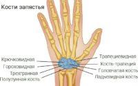 Боль в запястье правой руки, боль в запястье левой руки: причины