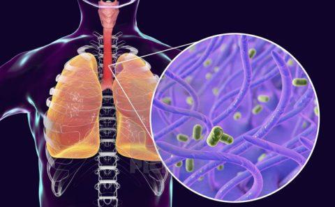 Коклюш: симптомы, возбудитель, диагностика и лечение