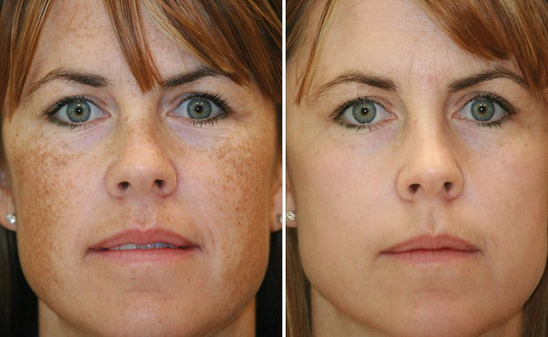 Удаление пигментации, фото до и после фототерапии