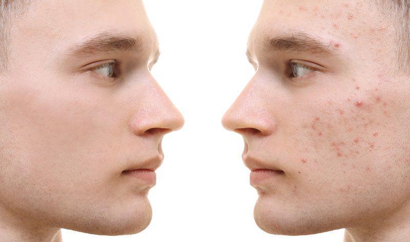 Фото до и после фототерапии, удаление акне