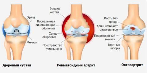 Артрит: симптомы, лечение, разновидности и причины