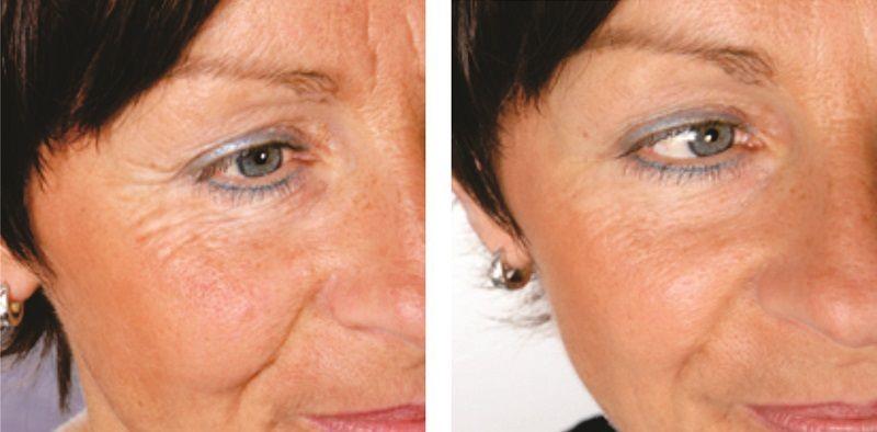 Фтотерапия лица, до и после