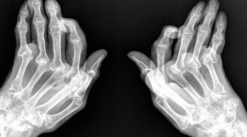 Рентген-снимок рук, пораженных ревматоидным артритом