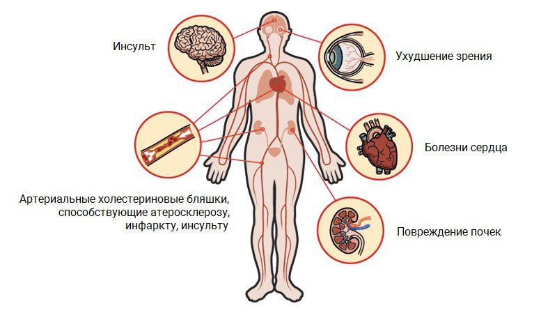 Риски гипертонии