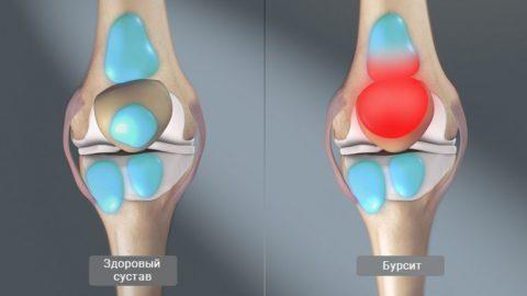 Бурсит сустава: симптомы, лечение, диагностика, осложнения и прогноз