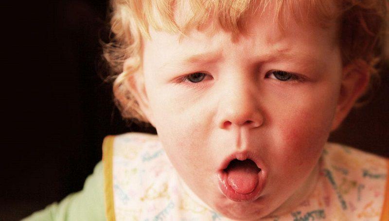 Коклюш, симптомы у детей