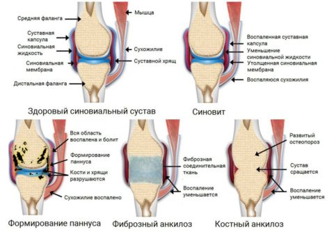 Ревматоидный артрит: причины, симптомы, диагностика и лечение, прогноз