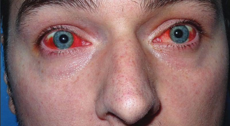 Микозное заражение глаз, фото