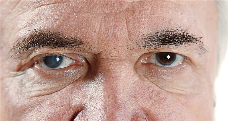 Глаукома, фото
