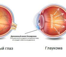 Глаукома: причины, симптомы, лечение, виды и стадии