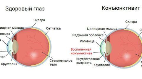 Конъюнктивит: причины, виды, симптомы и лечение