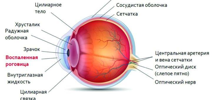 Травматический кератит глаза